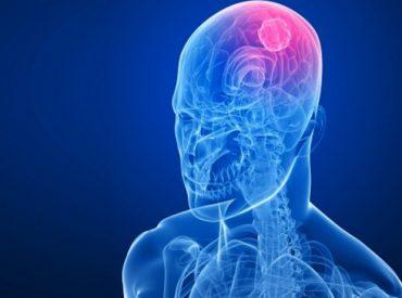 Cancer-de-cabeza-y-cuello-696x461